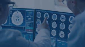 Doctors analyzing brain scans